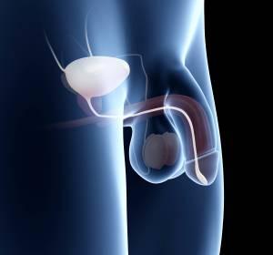 PD-L1-Bestimmung beim Urothelkarzinom: Multimediales Online-Portal