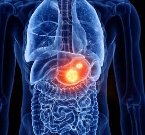 ASCO 2020: Trastuzumab Deruxtecan bei weiteren onkologischen HER2-positiven Tumor-Entitäten wirksam