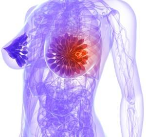 Mammakarzinom: Kein Überlebensvorteil durch lokoregionale Therapie