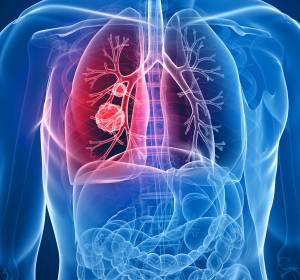 PD-L1+ NSCLC: Tiragolumab zusätzlich zu Atezolizumab in der Firstline verbessert ORR und PFS