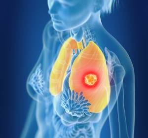 NSCLC: Vielversprechende Daten für Tiragolumab und Atezolizumab