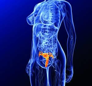 Rezidiviertes oder fortgeschrittenes Endometriumkarzinom: Potential von Dostarlimab