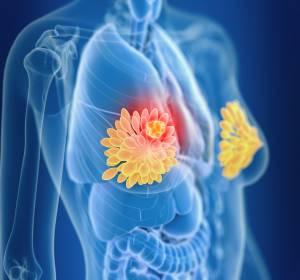 COVID-19: ESMO-Empfehlungen zur Therapie von Brustkrebspatientinnen