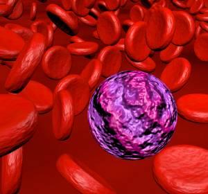 AML: Venetoclax + Azacitidin verbessert signifikant Ansprechraten und Gesamtüberleben gegenüber Placebo + Azacitidin