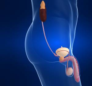 mUC: Vergleichbare ORR unter Atezolizumab auch bei Patienten mit Niereninsuffizienz
