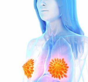 Mammkarzinom mit BRCA1/2-Mutation: Mehr Lebensqualität unter Talazoparib