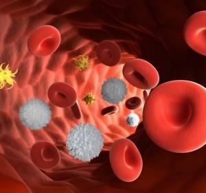 Chronische Immunthrombozytopenie: Neue Therapieoption mit Fostamatinib