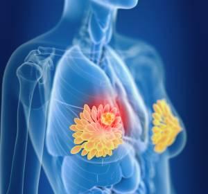 TNBC: Wirksamkeit von Atezolizumab auch in der Frühphase bestätigt