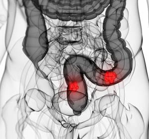 BRAF-V600E-mut.+mCRC%3A+Ver%C3%A4nderung+der+CEA-Werte+unter+zielgerichteter+Therapie+scheint+mit+klinischem+Outcome+assoziiert+zu+sein