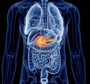 BRCA-mutiertes+Pankreaskarzinom%3A+PARP-Inhibition+verl%C3%A4ngert+PFS