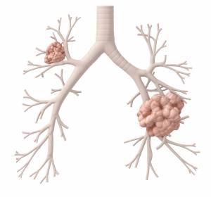 NSCLC: Hochrisikopatienten mit Lebermetastasen profitieren von Atezolizumab + Bevacizumab + Chemotherapie