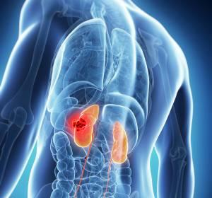 Therapie des fortgeschrittenen Nierenzellkarzinoms: Cabozantinib in der Erst- und Zweitlinie bewährt