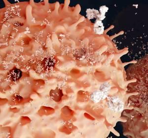 r/r MCL: Beschleunigte Zulassung für CAR-T-Zelltherapie Brexucabtagen autoleucel