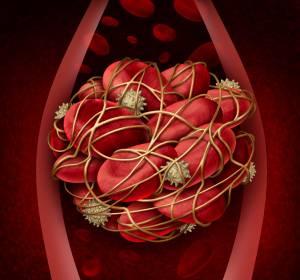Polycythaemia vera: Real-World-Daten bestätigt Senkung thromboembolischer Ereignisse unter JAK-Inhibitor Ruxolitinib