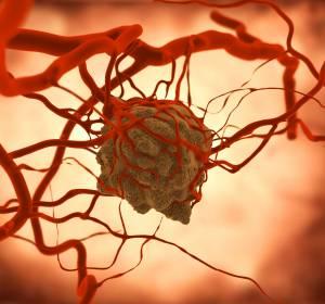 Identifikation von Tumorgewebe: Nanopartikel identifizieren und zerstören maligne Zellen