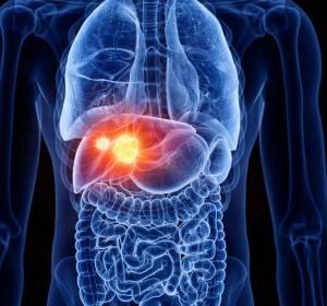 HCC: Vielversprechender Therapieansatz mit Atezolizumab + Bevacizumab