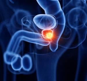 High-risk Prostatakarzinom: Wirksamkeit von Triptorelin nach radikaler Prostatektomie