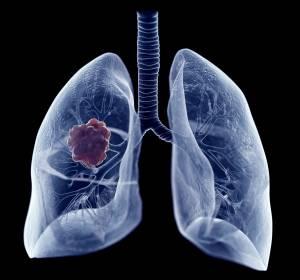 ROS1-Fusions-positives NSCLC: Klinisch bedeutende Wirksamkeit von Entrectinib  – auch bei Vorliegen von ZNS-Metastasen