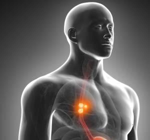 Ösophaguskarzinom: Relevante OS- und PFS-Verlängerung durch Pembrolizumab + Chemotherapie in der Erstlinie