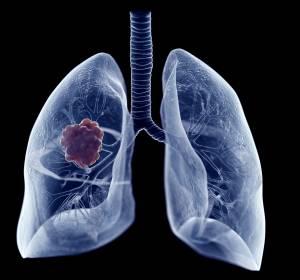 EGFRm NSCLC: Adjuvante Therapie mit Osimertinib reduziert das Risiko für ZNS-Rezidive