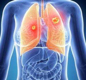 ALK+ NSCLC: Firstline-Behandlung mit Lorlatinib verbessert PFS signifikant im Vergleich zu Crizotinib