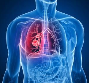 NSCLC mit PD-L1 ≥ 50%: Cemiplimab firstline verbessert OS und PFS signifikant im Vergleich zu Chemotherapie