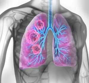 Stark vorbehandeltes NSCLC: Dauerhafte Anti-Tumor-Aktivität in Phase-I-Studie