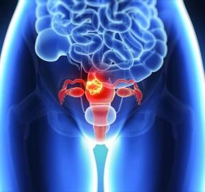Prostata- und Ovarialkarzinom: Klinisch bedeutsamer OS-Vorteil unter Olaparib