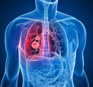 NSCLC: Gutes Ansprechen unter Lorlatinib auch bei stark vorbehandelten Patienten