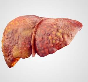 """""""Check-up für die Leber"""": Vorsorgeuntersuchungen können gefährlichen Leberzellkrebs vermeiden"""