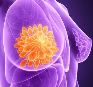 ESGO: Welttag der gynäkologischen Onkologie