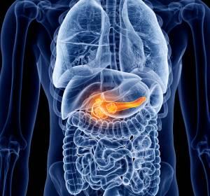 Pankreaskarzinom: Klinische Forschungsgruppe durch DFG gefördert