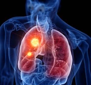 CheckMate -816: Nivolumab + Chemotherapie neoadjuvant verbessert pCR beim NSCLC signifikant