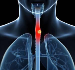 Ösophaguskarzinom: PFS-Verlängerung unter Pembrolizumab + Chemotherapie