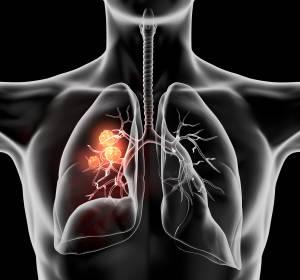 NSCLC: Kein Vorteil für postoperative Radiotherapie (PORT)