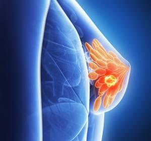 Neue ESO-ESMO-Leitlinie (ABC 5) zu Brustkrebs veröffentlicht: Experten-Panel sieht CDK4/6-Inhibitoren für Mehrzahl der PatientInnen in der Erstlinie