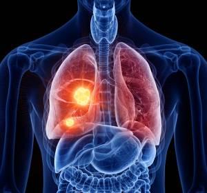 Fortgeschrittenes NSCLC: Patienten im Progress können von Drittlinien-Therapie mit Nintedanib + Docetaxel profitieren