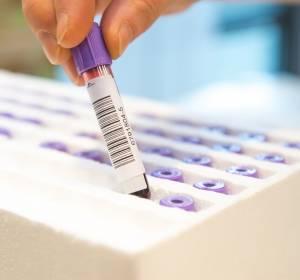Biomarker-Testung unterstützt Identifizierung von NTRK-Fusions-positiven Patienten