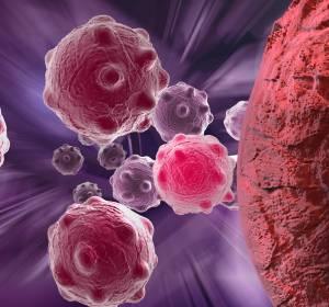 r/r AML: Überlebensvorteil unter Gilteritinib-Therapie nach allogener Stammzelltransplantation