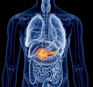 Präklinische Studie zu Pankreastumoren: Blockade der DNA-Reparatur bewirkt Apoptose der Krebszelle