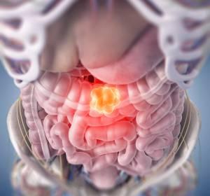 Dickdarmkrebs: Neuer prognostischer Ansatzpunkt identifiziert