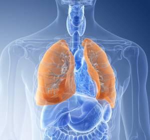 Metastasiertes NSCLC: EK-Zulassung für Nivolumab + Ipilimumab + 2 Zyklen platinbasierter Chemotherapie