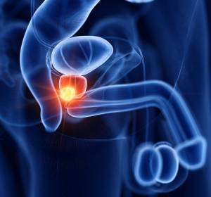 Prostatakarzinom: Protein μ-Crystallin CRYM hemmt das Tumorwachstum