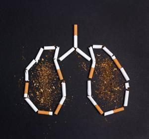 Lungenkrebsscreening mittels Low-Dose-CT: Nutzen überwiegt möglichen Schaden