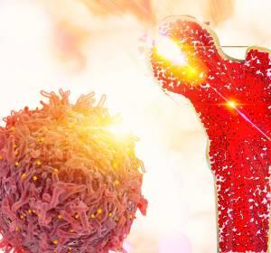 Hämatologie: Innovative Therapien beim MDS und MM