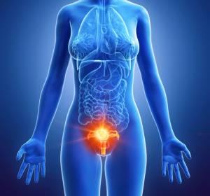 Fortgeschrittenes Platin-sensibles Ovarialkarzinom: Zulassungserweiterung für Niraparib als Erstlinien-Erhaltungstherapie