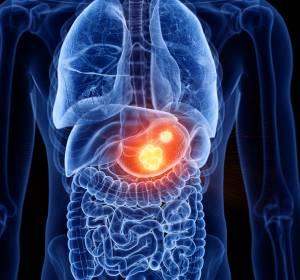 Ramucirumab: Bestätigter Standard in der Zweitlinie des fortgeschrittenen Magenkarzinoms