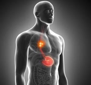 Nicht resezierbares fortgeschrittenes, rezidiviertes oder metastasiertes Plattenepithelkarzinom des Ösophagus: EK-Zulassung für Nivolumab Monotherapie