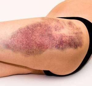Chronische Immunthrombozytopenie: Neue Leitlinie empfiehlt Fostamatinib als Zweitlinientherapie