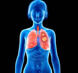 Brust- und Lungenkrebs: Pro-tumorale Inflammation als neues Ziel der Krebstherapie?